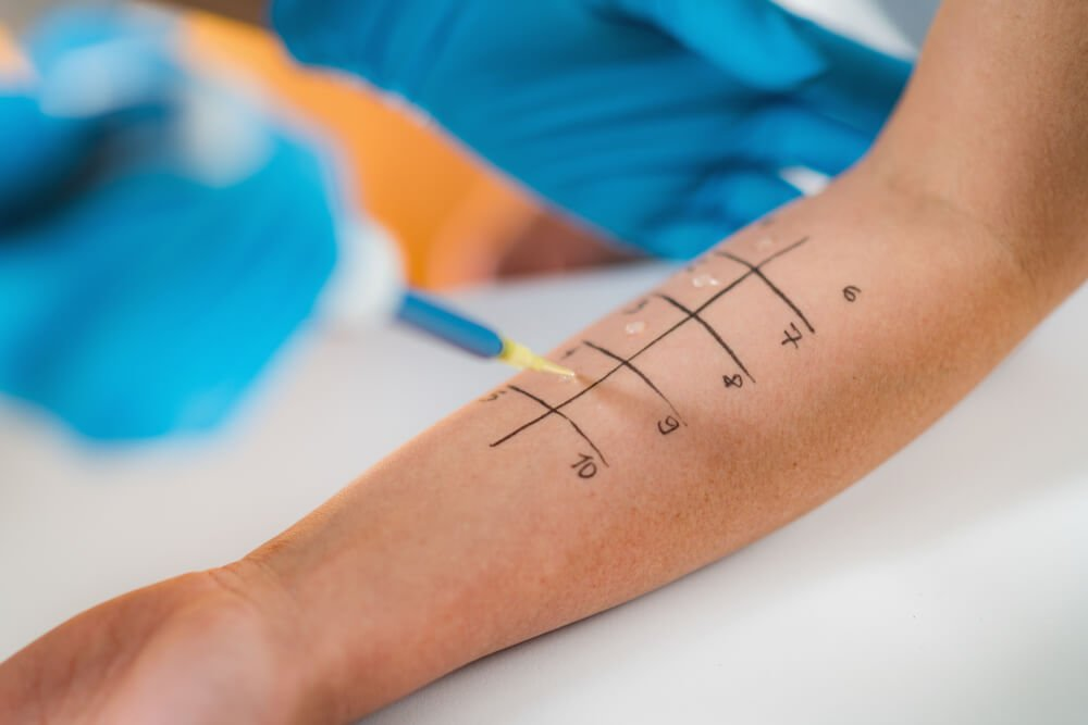 allergy prick test performed on an arm with a grid drawn onto it